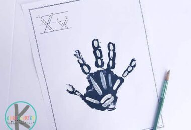 X-is-for-Xray-Hand-Art